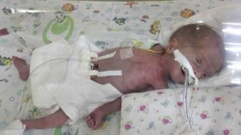 Малышу, рожденному с весом 800 г, срочно нужна наша помощь