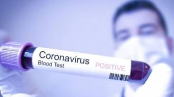 У Руденківці учні й педагоги захворіли накоронавірус