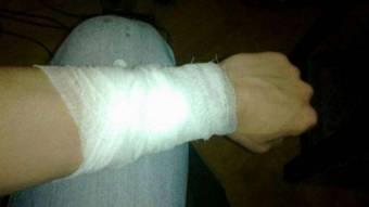 На Шишаччині дві дівчини намагалися порізати собі вени