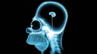 З 1квітня рентгенплівки купувати недоведеться